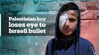 This Palestinian boy lost his eye due to an Israeli bullet