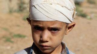 The War In Yemen: Villager warns residents of incoming bombs