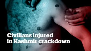 At least 150 people injured by tear gas, pellets in Kashmir crackdown