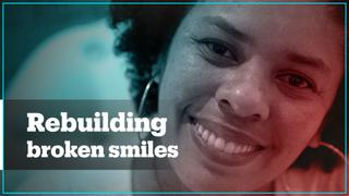 Dentists in Brazil rebuild smiles of domestic violence victims