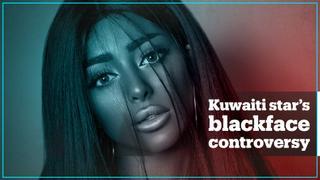 Kuwaiti social media star sparks outrage over blackface post