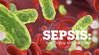 SEPSIS: How to stop a global killer?