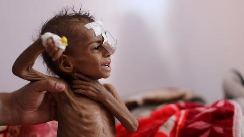Disappointing donor pledge of $1.7B sounds death knell for hunger-hit Yemen
