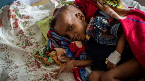 Over 30,000 Ethiopian children 'at high risk of death' in Tigray famine