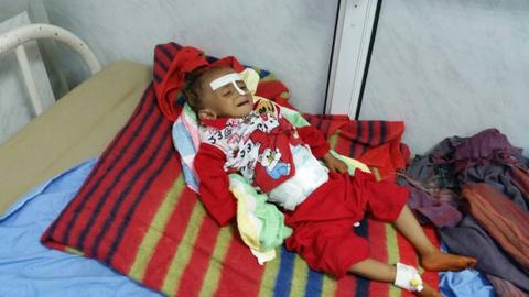 Most parents in Yemen cannot afford treatment for malnourished children