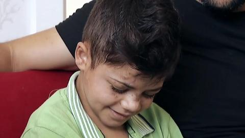 Syrian boy blinded in IED attack gets treatment in Turkey