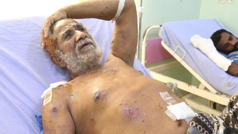 This Yemeni man lost two sons and 26 family members in a Saudi airstrike