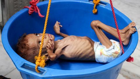 Five million children risk famine in war-torn Yemen –– charity