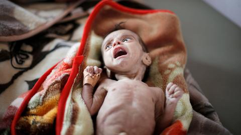 Yemen faces worsening threat of famine — UN aid chief