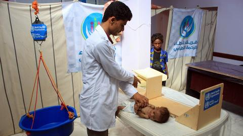 85,000 children dead from 'extreme hunger' in Yemen