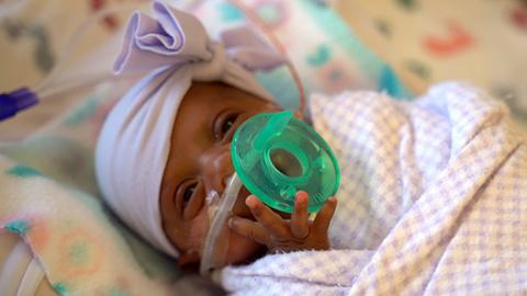 Girl believed to be tiniest newborn weighed as much as apple
