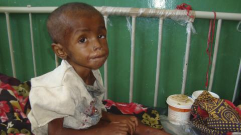 UNICEF says acute malnutrition on the rise in Somali children
