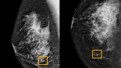 Study finds Google AI system could improve breast cancer detection