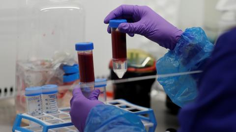 Dangerous blood clots pose perplexing coronavirus threat