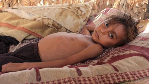 Nearly 10 million children will suffer from malnutrition in 2021: UNICEF