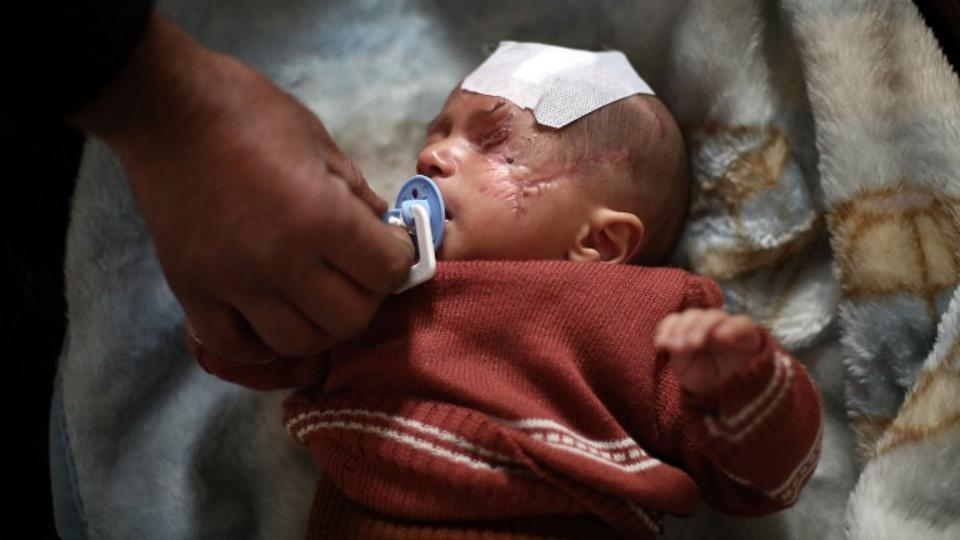 The father of Syrian baby Karim Abdallah, who lost an eye as well as his mother in regime shelling, adjusting his son's pacifier inside his family home in the town of Beit Sawa in Eastern Ghouta, December 24, 2017.