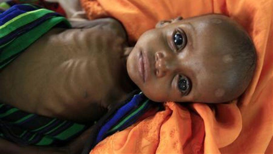 An unidentified severely malnourished Somali refugee child rests inside a ward at the Medecins Sans Frontieres (MSF) hospital at the Dagahale refugee camp in Dadaab, near the Kenya-Somalia border, July 28, 2011.