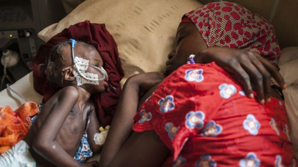 A woman and a young child suffering from severe malnutrition sleep on a bed in the ICU ward at the In-Patient Therapeutic Feeding Centre in the Gwangwe district of Maiduguri, the capital of Borno State, northeastern Nigeria, September 17, 2016.