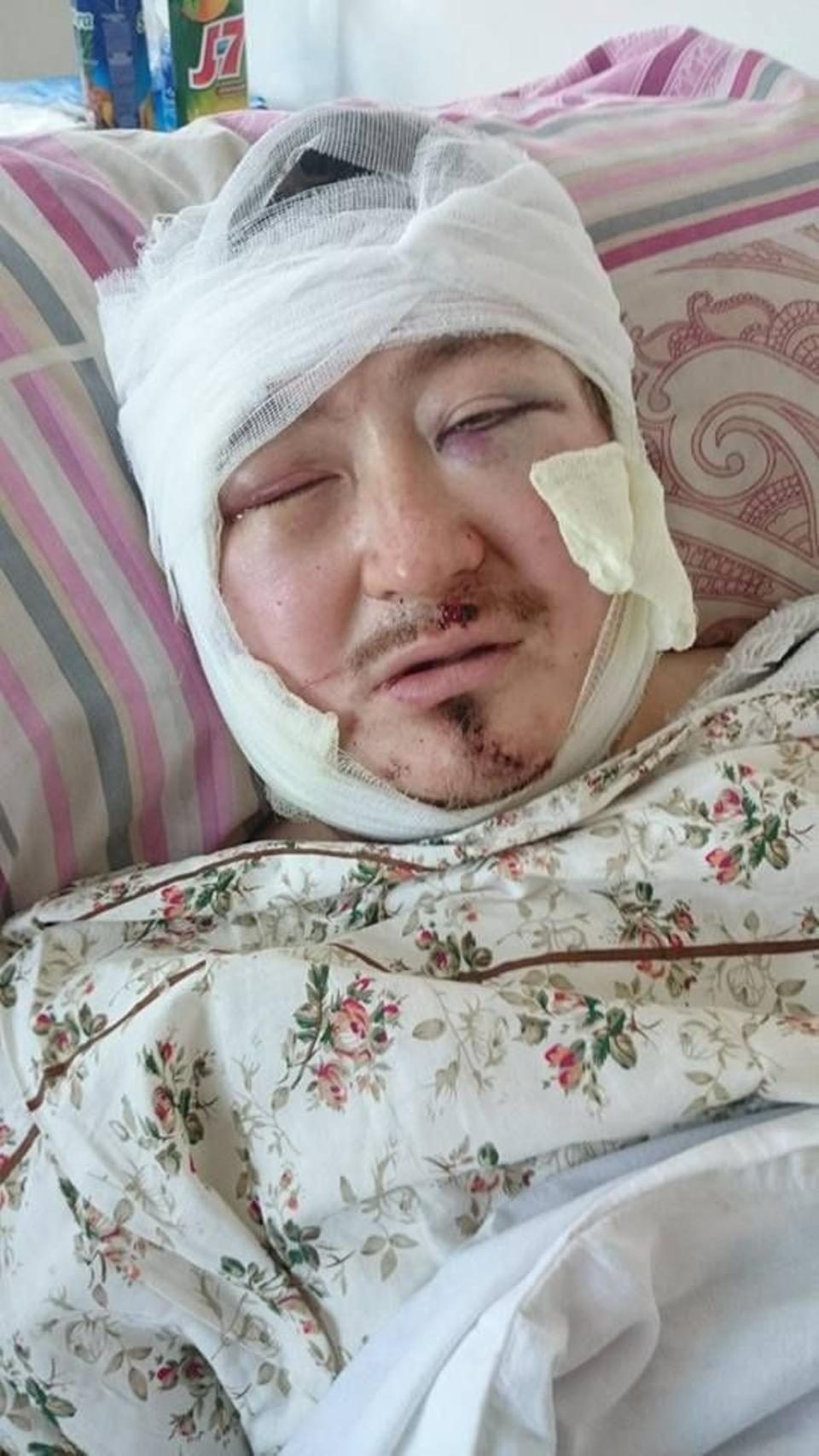 Kadyr Malikov in hospital after the attack. (TRT World)