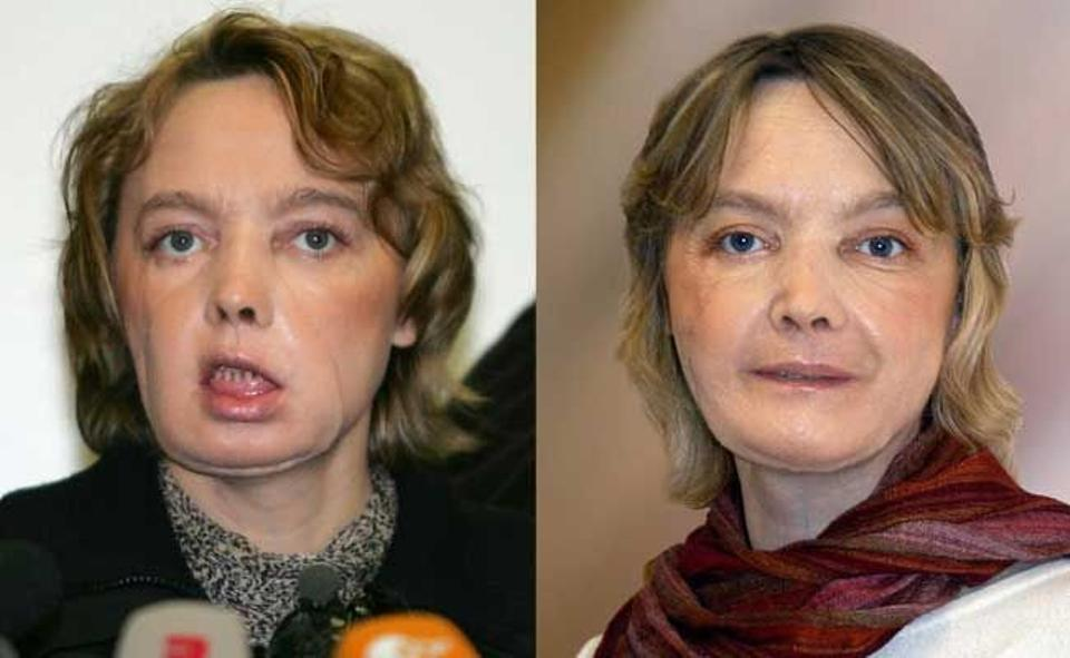 French Isabelle Dinoire, 39, underwent the world's first face transplant in 2005. A few months after her operation left, and a year later. She died following a long illness on April 22, 2016.