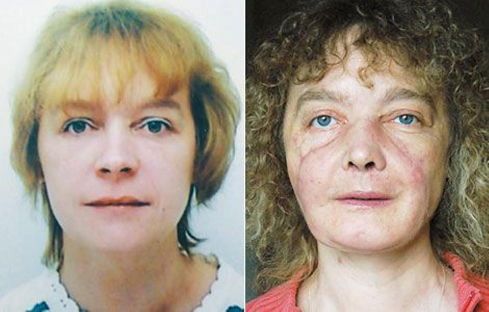 Isabelle Dinoire in June 2001 before being mauled by her dog (left) and in June of 2007, 18 months after her face transplant.