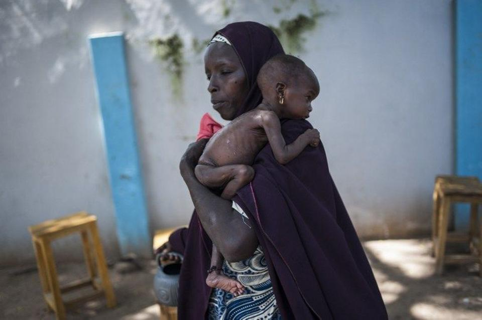 A mother holding her young malnourished baby at a public health facility in the Dalaram district of Maiduguri, northeast Nigeria, September 15, 2016.
