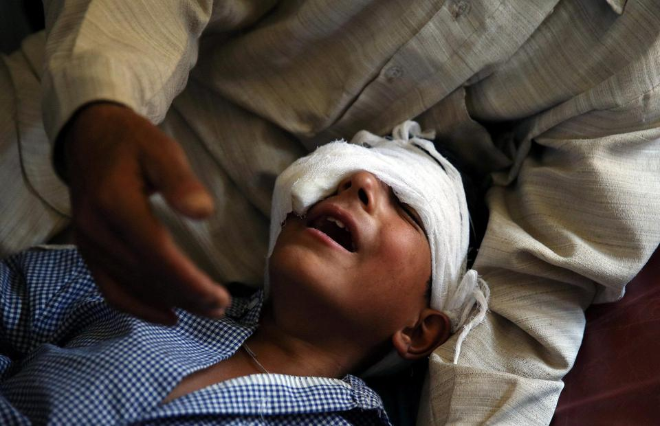 File photo show an 8-year-old boy in Indian-administered Kashmir being consoled by his father who says his son was injured by pellets shot by Indian troops.