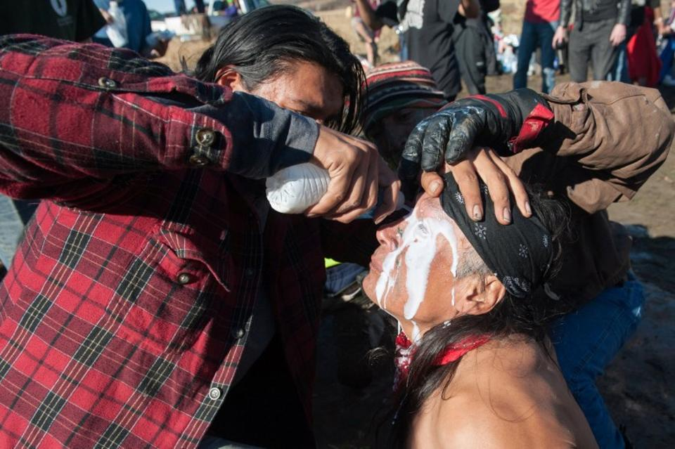 A person pours a pepper spray antidote into a protester's eyes during a protest against the building of a pipeline on the Standing Rock Indian Reservation near Cannonball, North Dakota, US November 2, 2016. (Reuters)