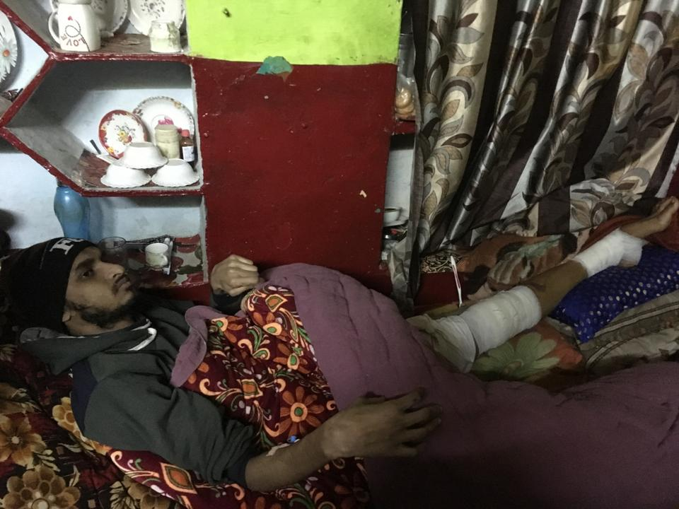 Mohammad Sharik is recovering from fractured leg at his home in Bijnor, Uttar Pradesh.